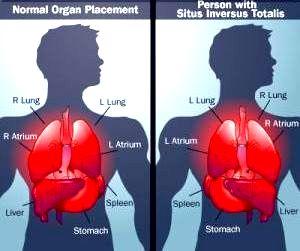 In stanga imaginii, un om normal, iar in dreapta cum arata un om cu organe interne inversate