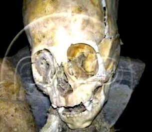 Cap de copil? Nu! În Peru s-a găsit capul gigant și triunghiular al unui extraterestru!
