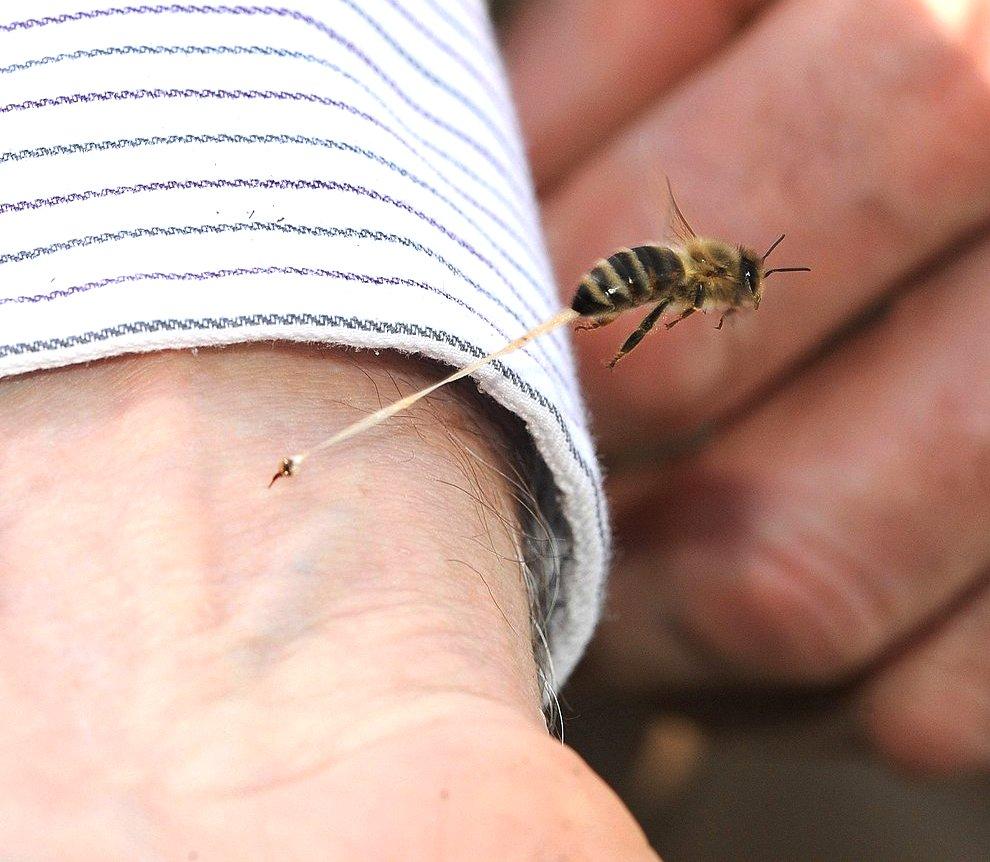 O incredibilă poză a unei înţepături de albine ne arată detalii uimitoare