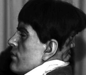Edward Mordake, bărbatul cu două feţe, cel de-al doilea chip fiind situat în spatele capului! Îi şoptea noaptea cuvinte malefice...