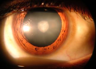 cataracta 19