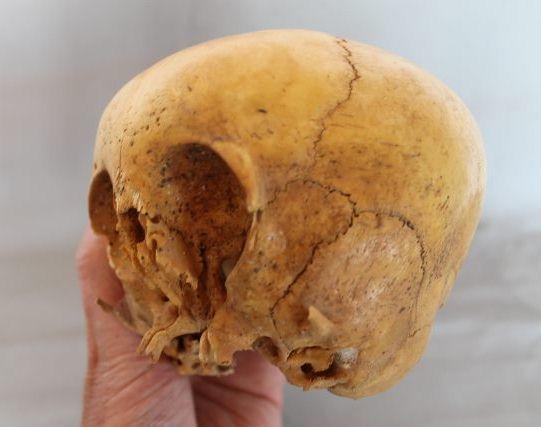 craniu extraterestru Peru 2