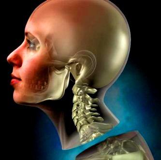transplant de cap 3