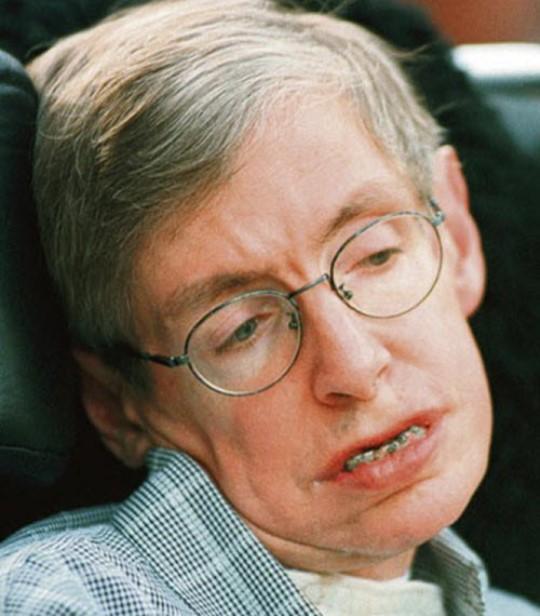Hawking caruntit... si-a pierdut dintele de jos