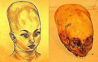 """Misterioasele cranii alungite din Croaţia - extratereştrii-zei spuneau că forma alungită a capului ar fi una """"nobilă""""!"""