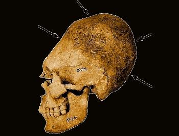 51 de cranii umane alungite, din secolul al V-lea, au fost descoperite în Ungaria. Voiau oamenii din vechime să imite forma alungită a craniilor extraterestre?