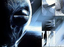 """Incredibil ce implanturi """"extraterestre"""" a scos un doctor chirurg din mai mulţi pacienţi! Sunt compuse din metale sau elemente bizare şi nu au nici puncte de inserţie..."""