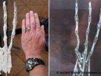Este fals sau adevărat acest schelet al unei mâini uriaşe, cu 3 degete!? Pare că ar fi aparţinut unui gigant din Peru, de 3 metri înălţime...